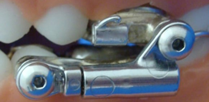 herbst appliance, a state-of-the-art orthodontic appliance
